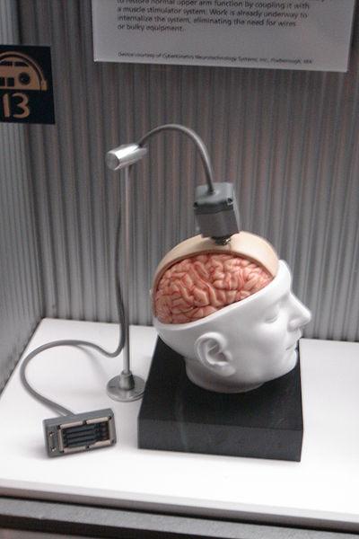 400px-braingate